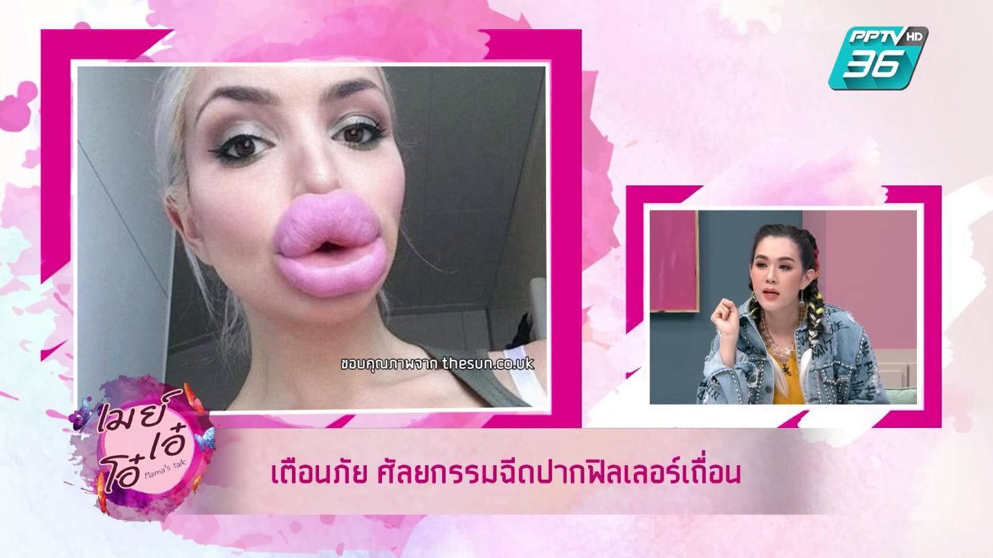 เมย์ เอ๋ โอ๋ เตือนสาวๆ  ศัลยกรรมปากสวยระวังฟิลเลอร์ปลอม