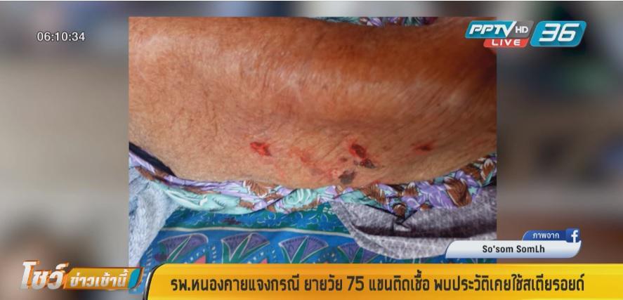 รพ.หนองคาย แจงกรณี ยายวัย 75 ปี แขนติดเชื้อ พบประวัติเคยใช้สเตียรอยด์